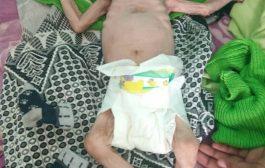 مسيمير الحواشب تناشد المنظمات الإنسانية والإغاثية للحد من حالات سوء التغذية التي تهدد أبناءها))