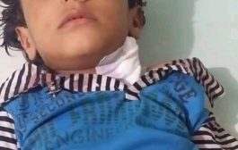 أصابة طفل بطلق ناري عند استهداف مليشيات الحوثي قرية الشغادر وسط حجر