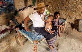 حرب اليمن تقطع طريق الأب إلى العمل.. وطفله الصغير يتضور جوعا