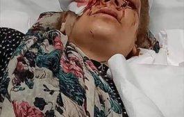 في حادثة عربية بشعة: أردني يقتلع عين زوجته أمام أطفالها