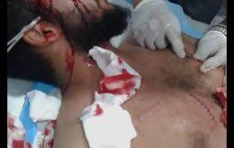شاب يتعرض لحادثة طعن في عدن من قبل نساء