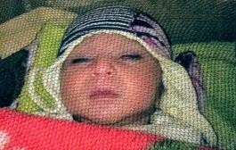 أول يمني يعرض طفلته إبنة ال10 أيام للبيع.. صورة