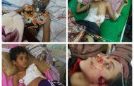 تقرير حقوقي يكشف عن انتهاكات مروعة ترتكبها المليشيات الحوثية بحق المدنيين في محافظة الضالع