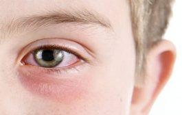 دراسة طبية: العين هدف رئيسي لـ