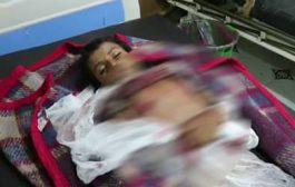 قناص الحوثيين يقتل طفل أثناء شرائه أغراض لأهله في الحديدة