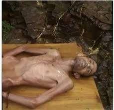 تعز : وفاة شاب بعد ستة أعوام من حبسه وتعذيبه على يد أبويه