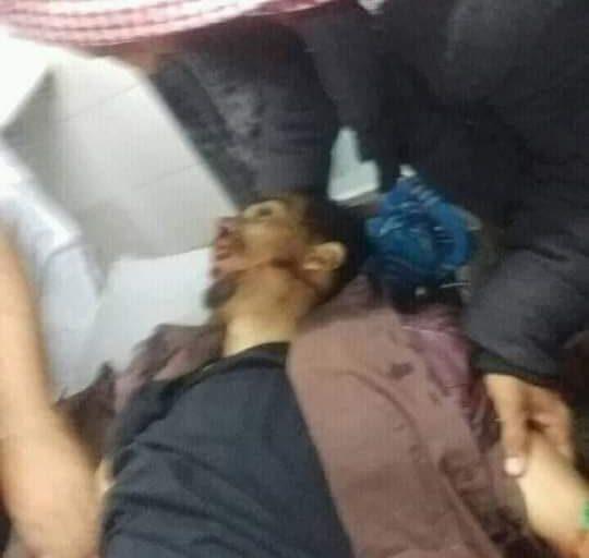 محافظة الضالع تشهد عملية اغتيال