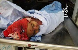 اشتباكات عنيفة في تعز وسقوط أطفال ومدنيين قتلى وجرحى