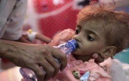 جهات أممية اليمن ضمن 4 دول تقترب من حافة المجاعة