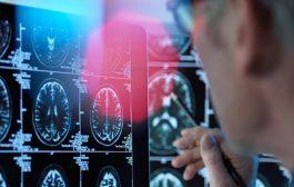 دراسة تكشف تأثير كورونا على الدماغ