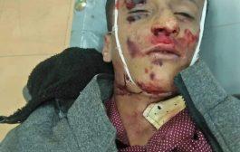 وفاة طفل دهساً في لحج
