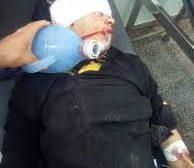 إصابة عامل مزرعة برصاص قناص حوثي في غرب قعطبة
