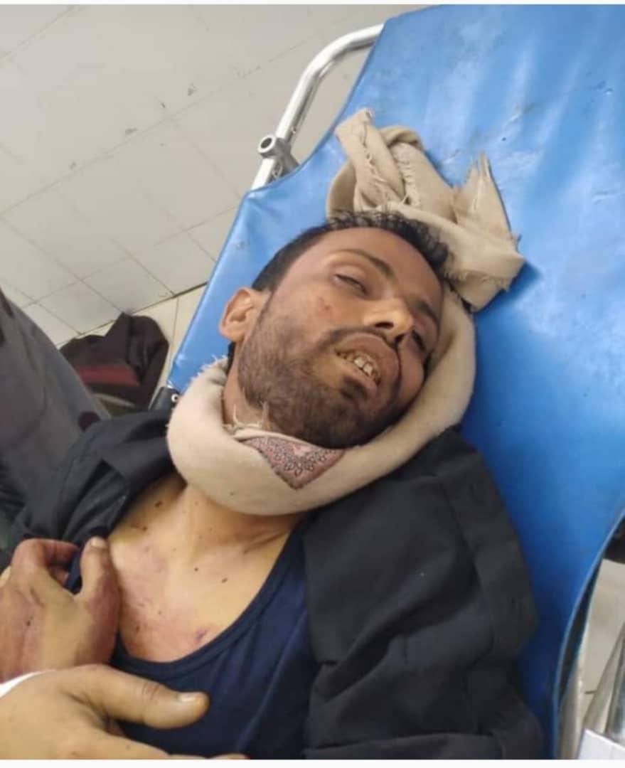 عصابة إجرامية تقتل في وضح النهار شابا وسط مدينة تعز