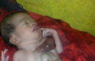 ولادة طفلة وقلبها خارج جسدها في لحج