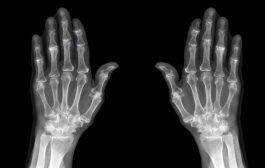هشاشة العظام وخطر الإصابة بمرض