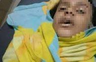ضرب وحرق في طفل بإب حتى الموت