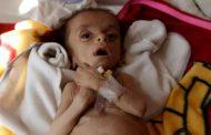الأمم المتحدة تحذر من ارتفاع مستويات انعدام الأمن الغذائي في اليمن